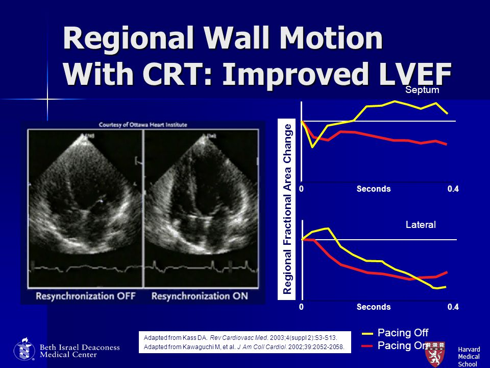 Harvard Medical School Regional Wall Motion With CRT: Improved LVEF Septum Lateral Pacing Off Pacing On Regional Fractional Area Change Seconds0.40 Se