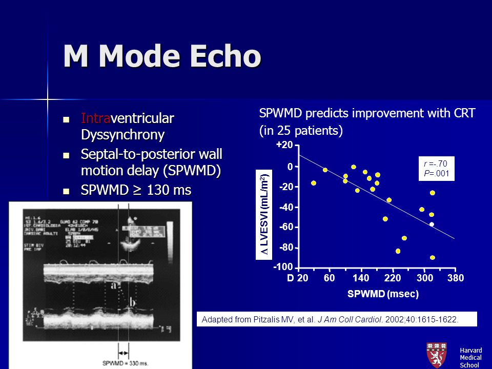 Harvard Medical School M Mode Echo Intraventricular Dyssynchrony Intraventricular Dyssynchrony Septal-to-posterior wall motion delay (SPWMD) Septal-to