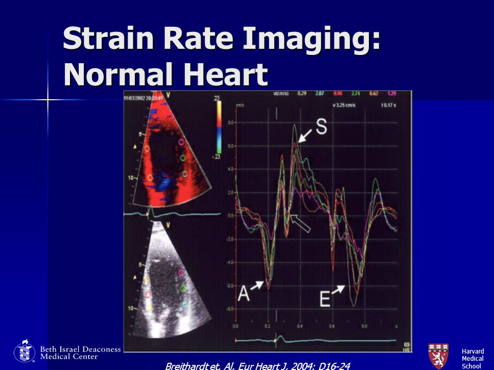Strain Rate Imaging Strain Rate Imaging