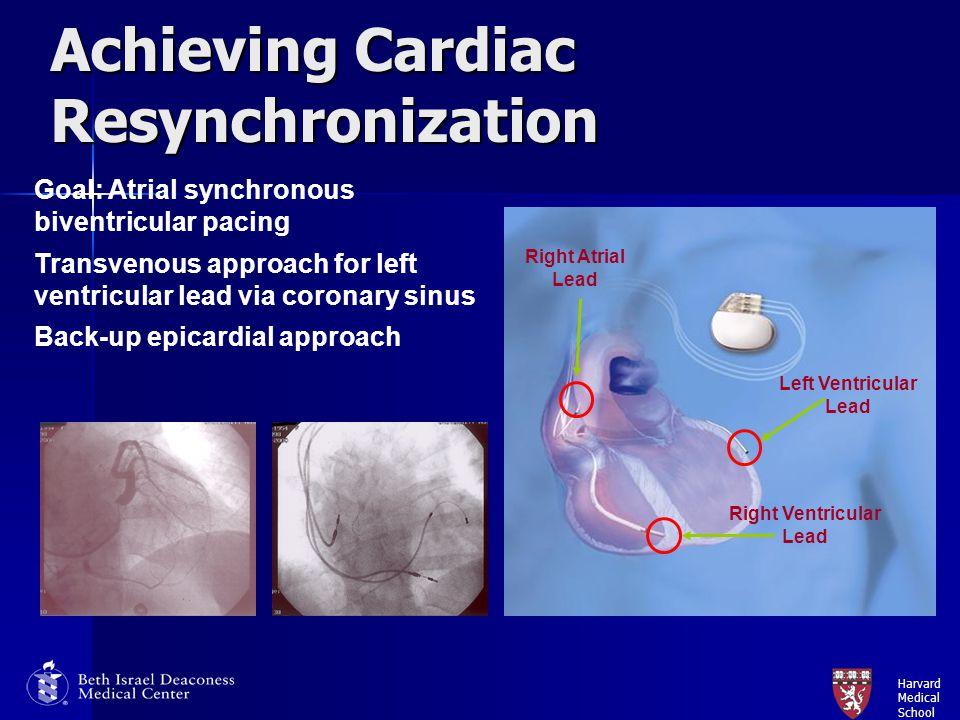 Harvard Medical School Achieving Cardiac Resynchronization Goal: Atrial synchronous biventricular pacing Transvenous approach for left ventricular lea
