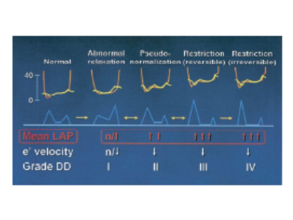 http://www.echobasics.de/diastole-en.html Tissue Doppler Imaging (e')