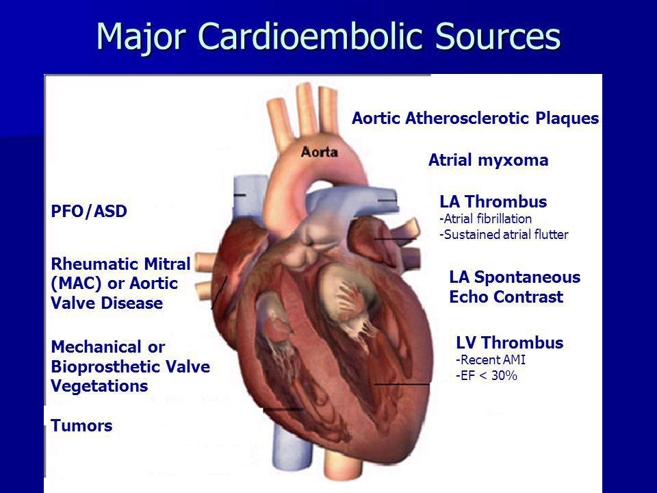 LV Thrombi – Background & Incidence Among most common complications of STEMI Among most common complications of STEMI Dependent upon infarct location and size Dependent upon infarct location and size –Large, anterior STEMI's –Aneurysm formation and akinesis or dyskinesis –Reduced LVEF –Increased WMA's Develop early (within 2 weeks, median 5 days), embolization within 1 st 4 months Develop early (within 2 weeks, median 5 days), embolization within 1 st 4 months Incidence in reperfusion era – (predominantly thrombolytic therapy) Incidence in reperfusion era – (predominantly thrombolytic therapy) –8326 patients GISSI-3 database –LV thrombus 5.1%, overall –Anterior infarct 11.5% with LV thrombus –Other infarcts 2.3% with LV thrombus –May be underestimate (excluded severe CHF and SBP < 100 mmHg) Incidence in reperfusion era – (primary PCI) Incidence in reperfusion era – (primary PCI) –163 patients –LV thrombus 4.3%, overall –Anterior infarct 10.4% with LV thrombus –Other infarcts 0% with LV thrombus
