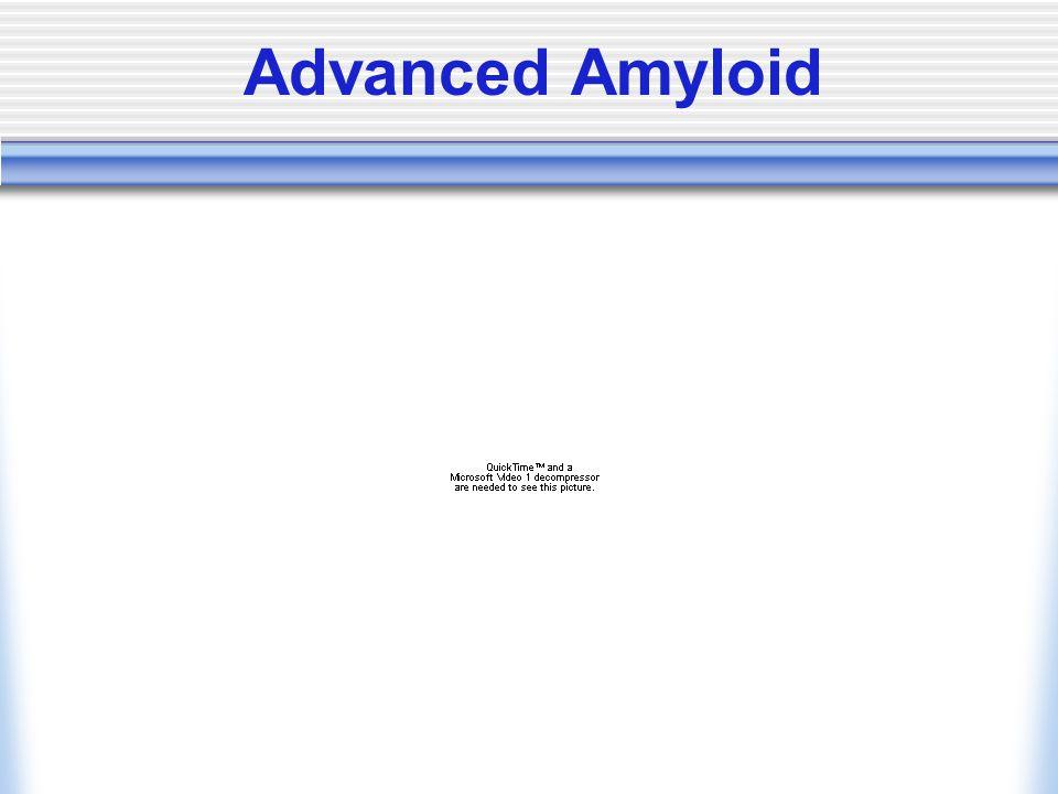 Advanced Amyloid