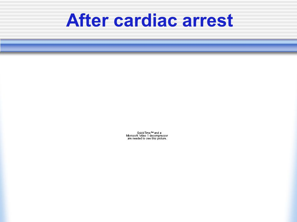 After cardiac arrest