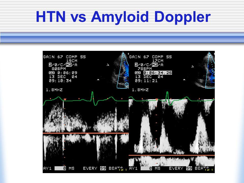 HTN vs Amyloid Doppler