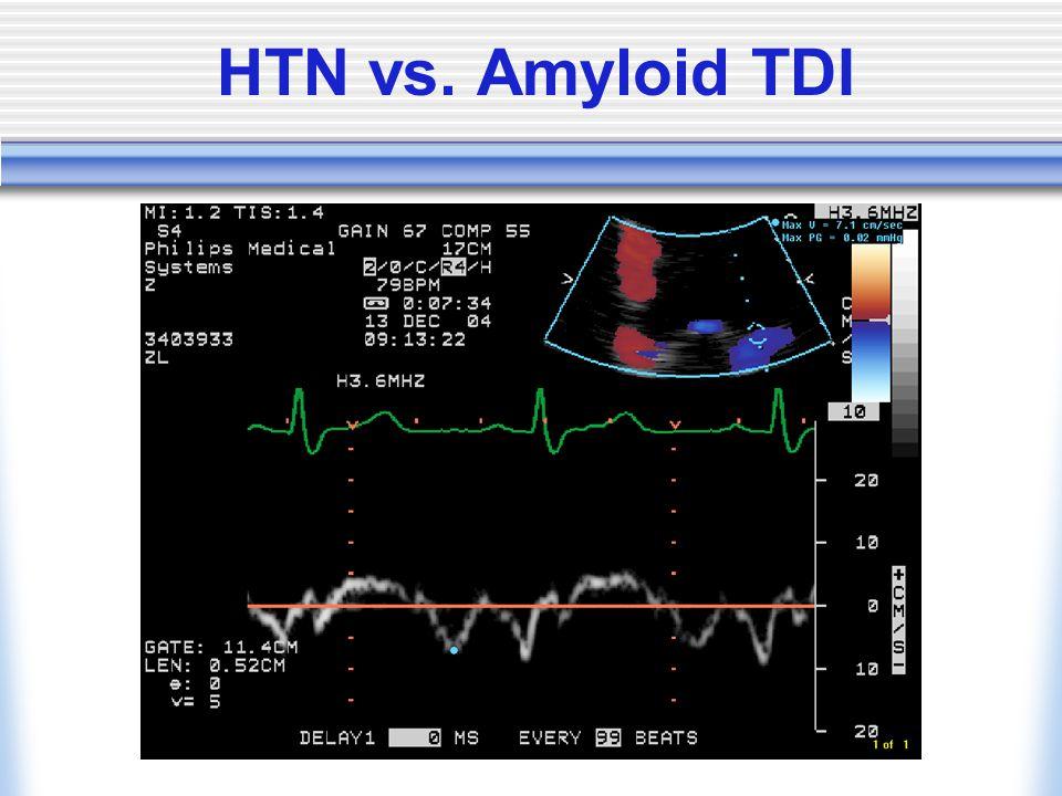 HTN vs. Amyloid TDI