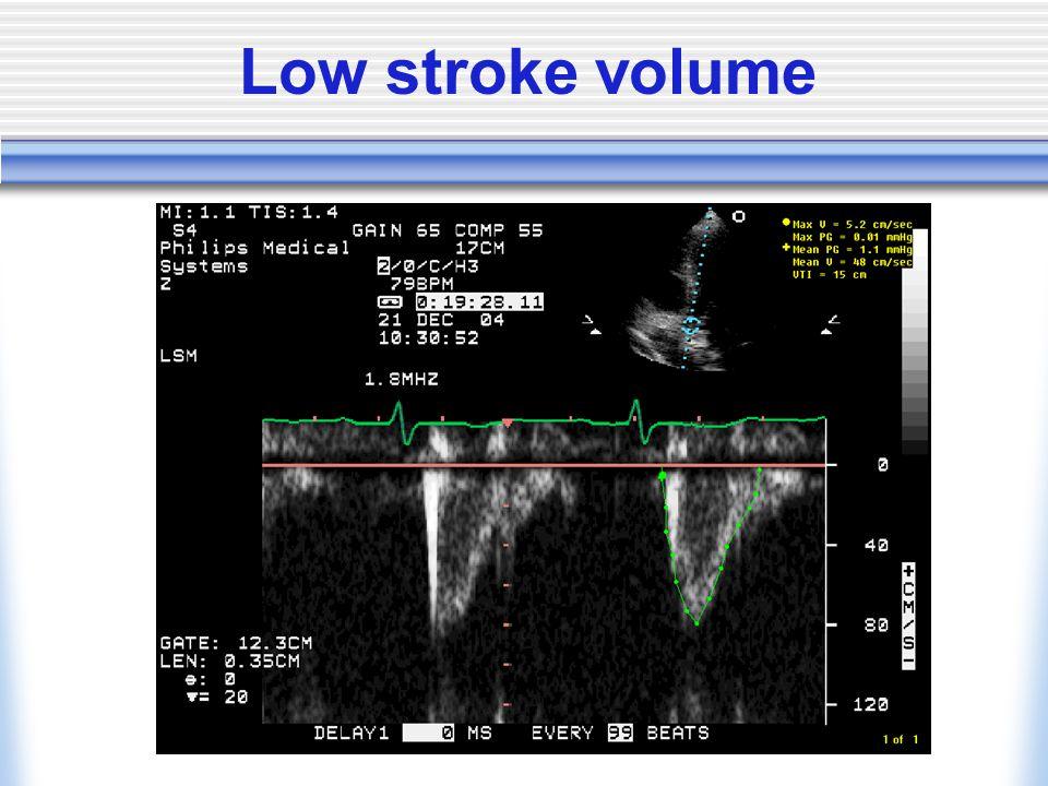 Low stroke volume
