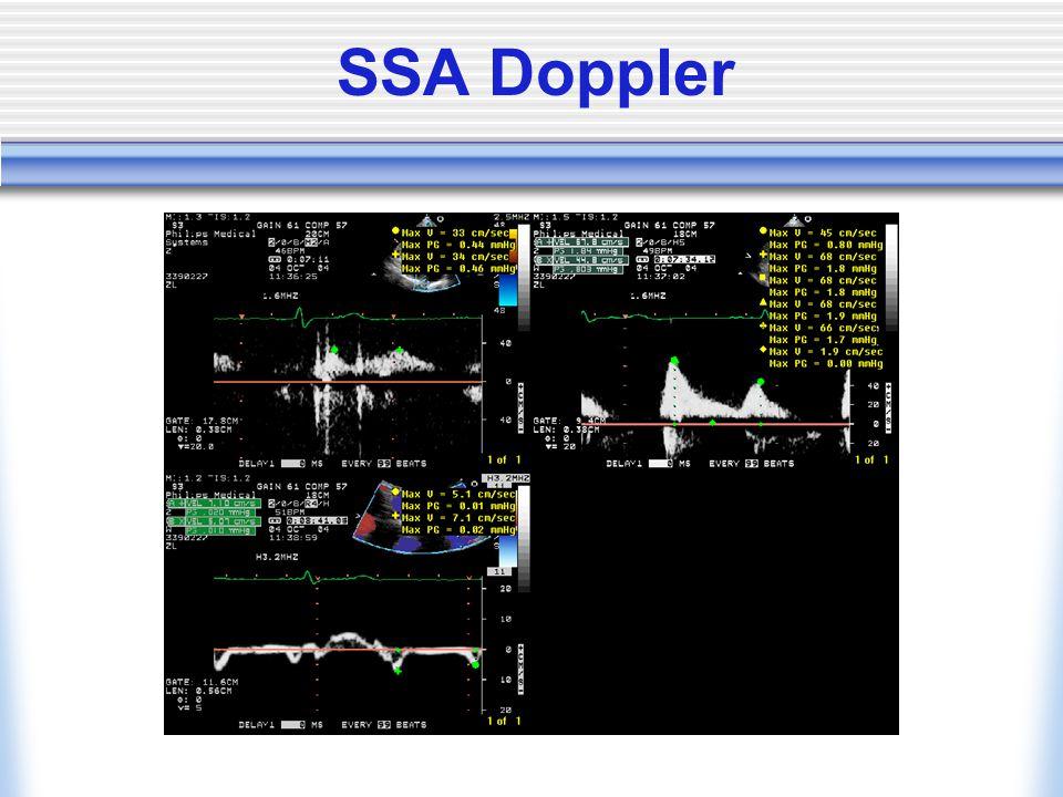 SSA Doppler
