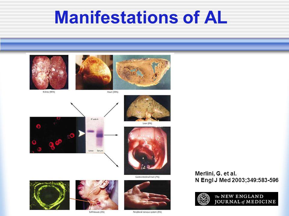 Merlini, G. et al. N Engl J Med 2003;349:583-596 Manifestations of AL