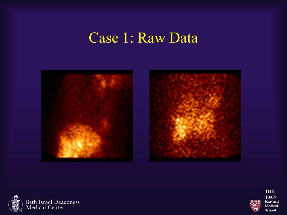 Harvard Medical School THH 10/05 Case 1: Raw Data