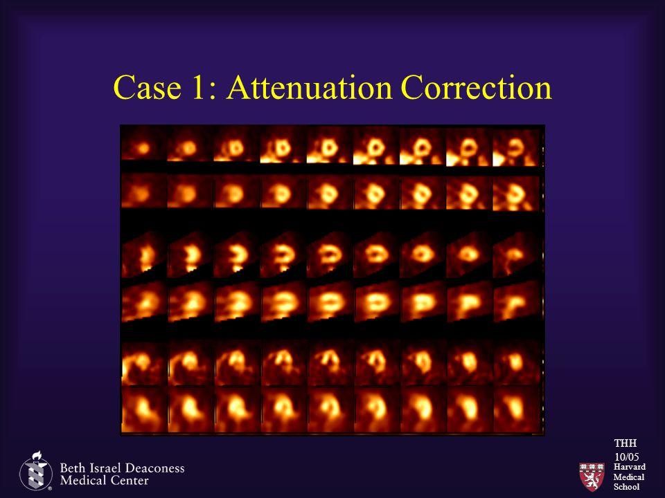 Harvard Medical School THH 10/05 Case 1: Attenuation Correction