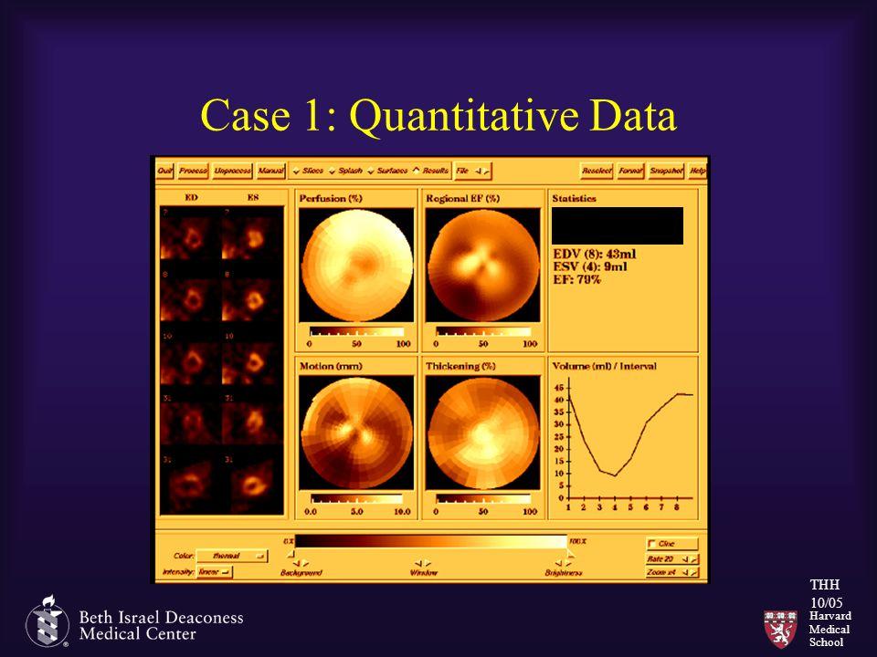 Harvard Medical School THH 10/05 Case 1: Quantitative Data