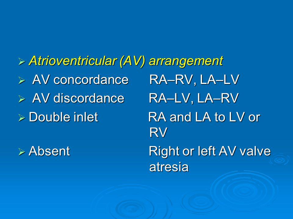  Atrioventricular (AV) arrangement  AV concordance RA–RV, LA–LV  AV discordance RA–LV, LA–RV  Double inlet RA and LA to LV or RV  Absent Right or left AV valve atresia