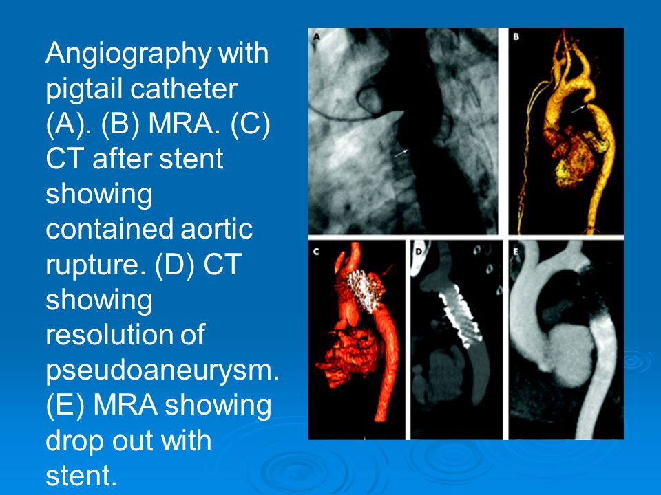 Angiography with pigtail catheter (A).(B) MRA.