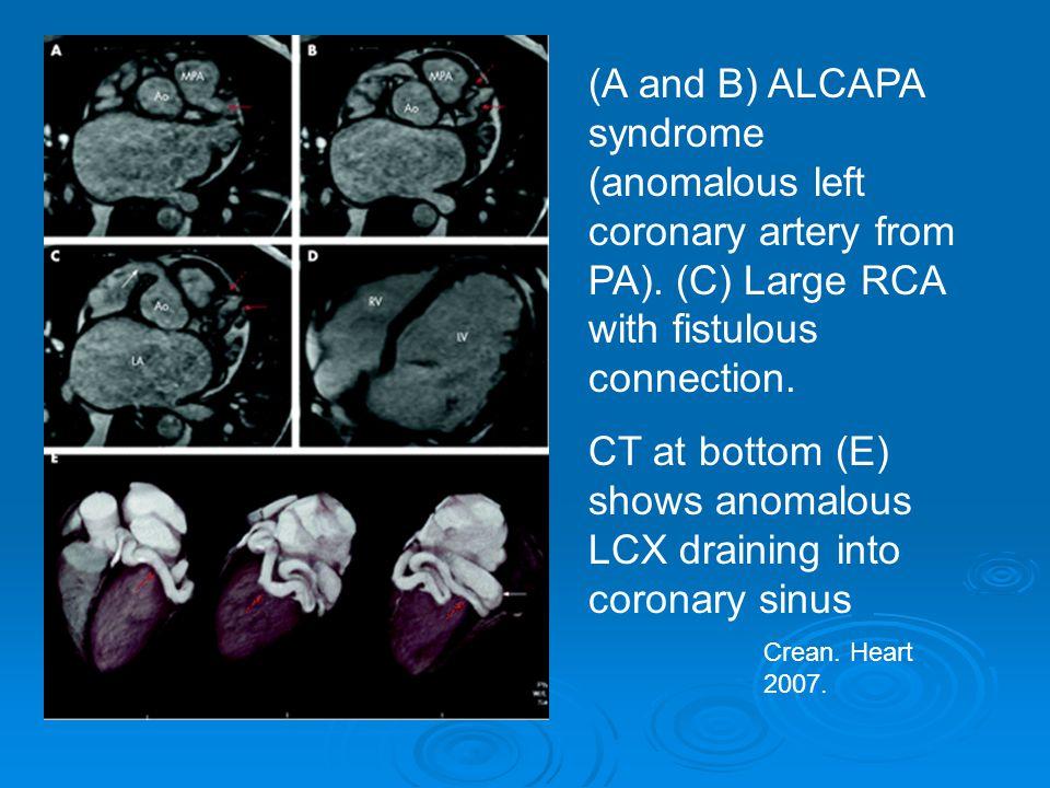 Crean.Heart 2007. (A and B) ALCAPA syndrome (anomalous left coronary artery from PA).