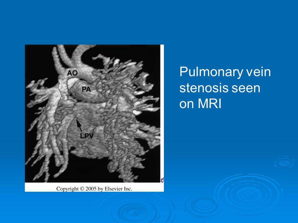 Pulmonary vein stenosis seen on MRI