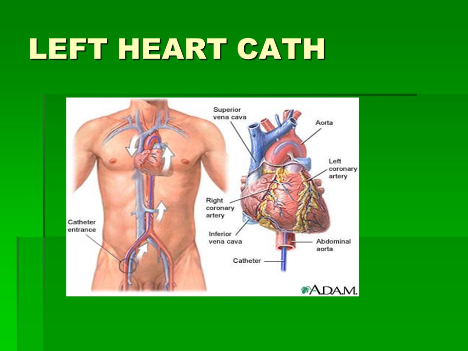 LEFT HEART CATH