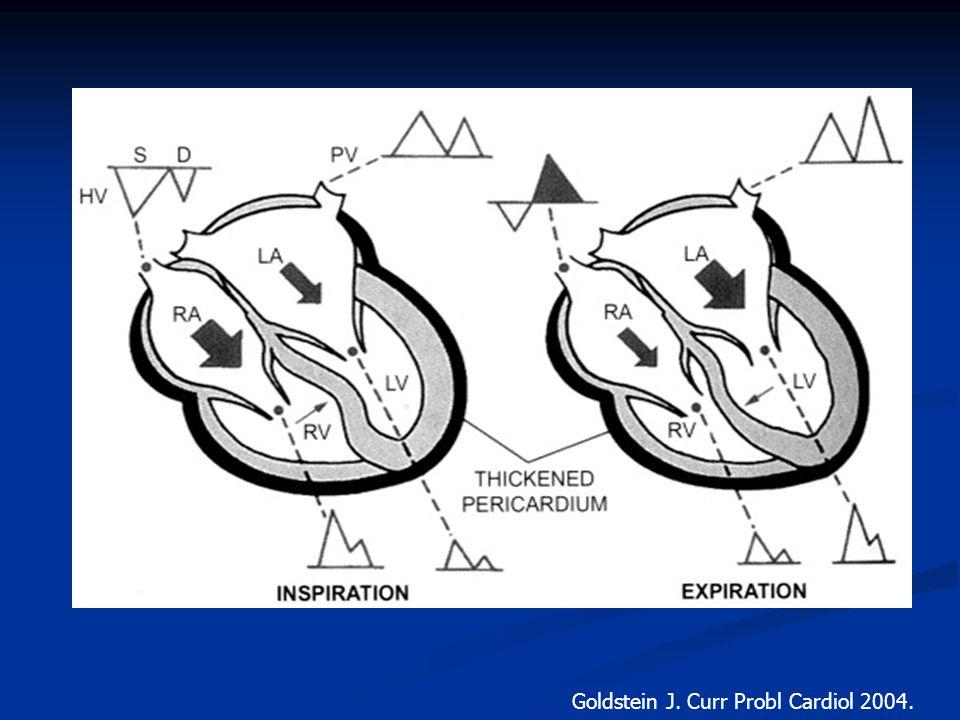 Goldstein J. Curr Probl Cardiol 2004.
