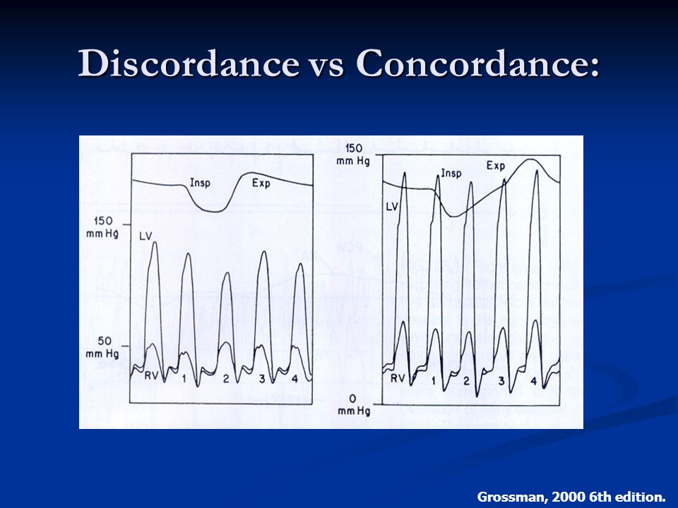 Discordance vs Concordance: Grossman, 2000 6th edition.