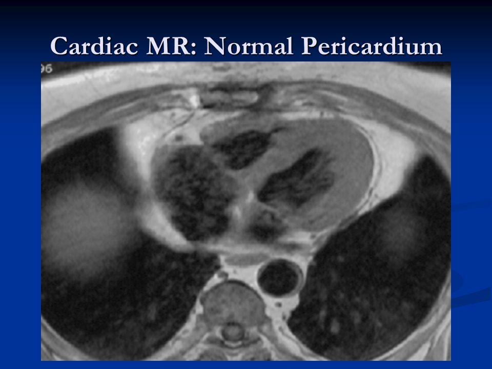 Cardiac MR: Normal Pericardium