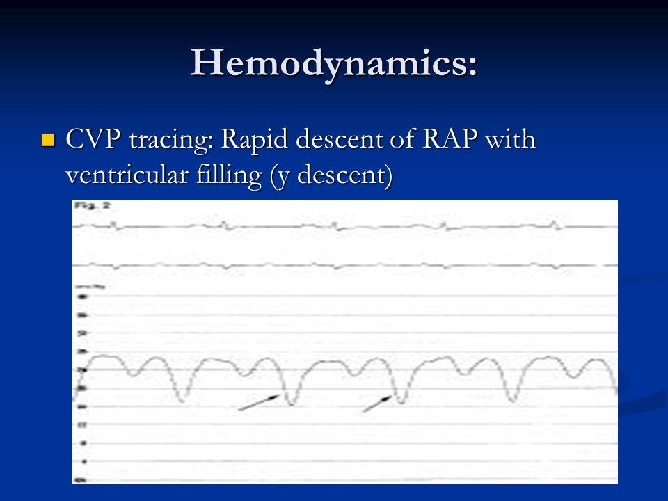 Hemodynamics: CVP tracing: Rapid descent of RAP with ventricular filling (y descent) CVP tracing: Rapid descent of RAP with ventricular filling (y descent)