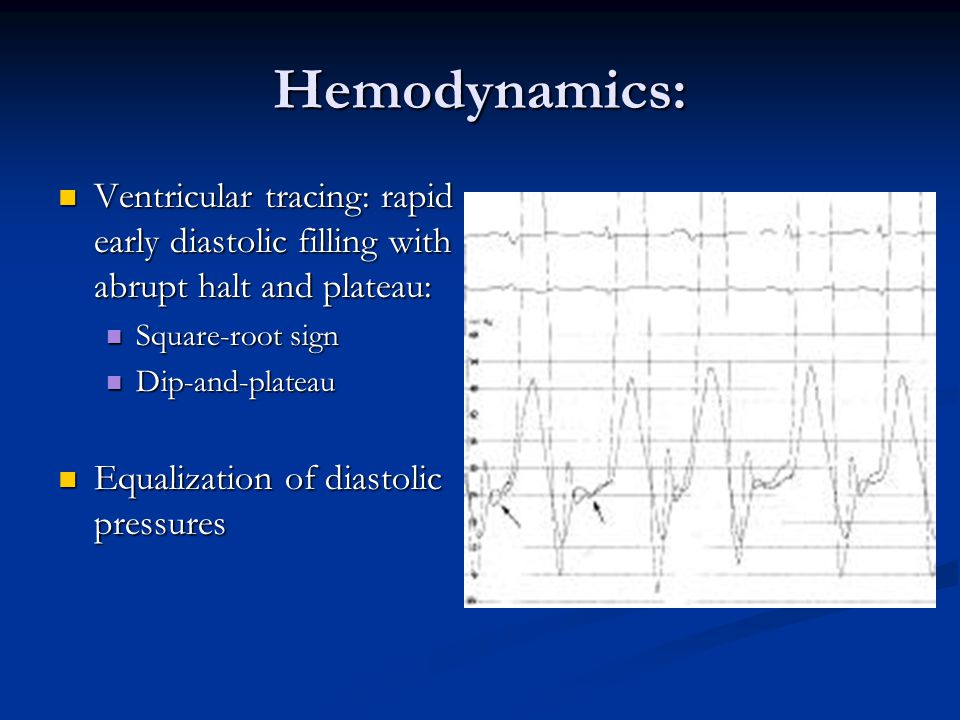 Hemodynamics: Ventricular tracing: rapid early diastolic filling with abrupt halt and plateau: Ventricular tracing: rapid early diastolic filling with abrupt halt and plateau: Square-root sign Square-root sign Dip-and-plateau Dip-and-plateau Equalization of diastolic pressures Equalization of diastolic pressures