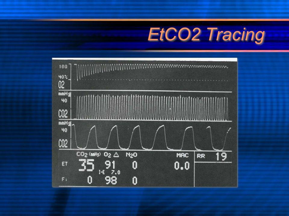 EtCO2 Tracing