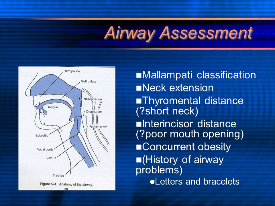 Airway Assessment Mallampati classification Neck extension Thyromental distance (?short neck) Interincisor distance (?poor mouth opening) Concurrent o