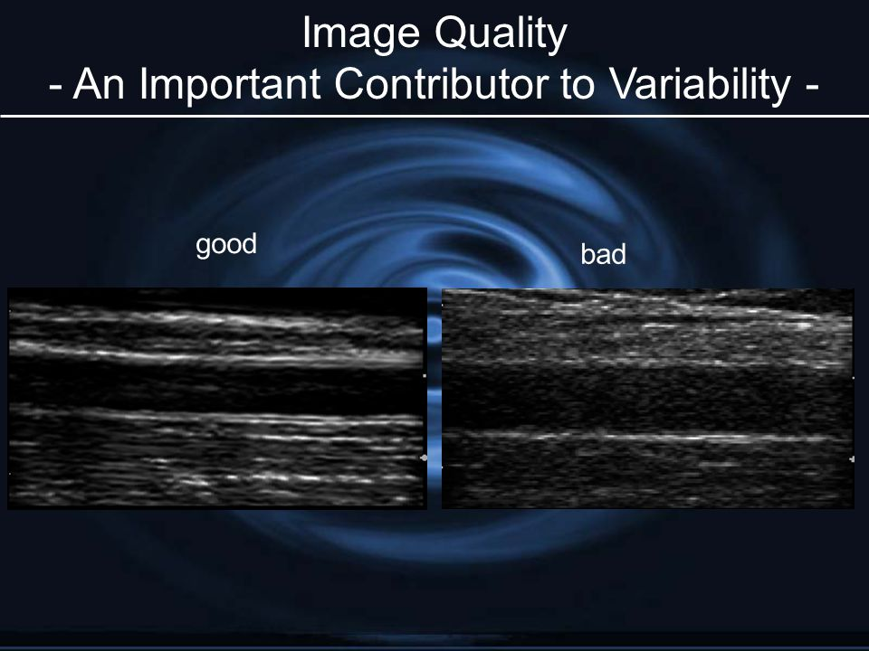 good bad Image Quality - An Important Contributor to Variability -