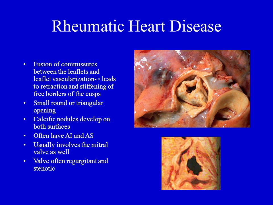 Rheumatic Heart Disease Fusion of commissures between the leaflets and leaflet vascularization-> leads to retraction and stiffening of free borders of the cusps Small round or triangular opening Calcific nodules develop on both surfaces Often have AI and AS Usually involves the mitral valve as well Valve often regurgitant and stenotic