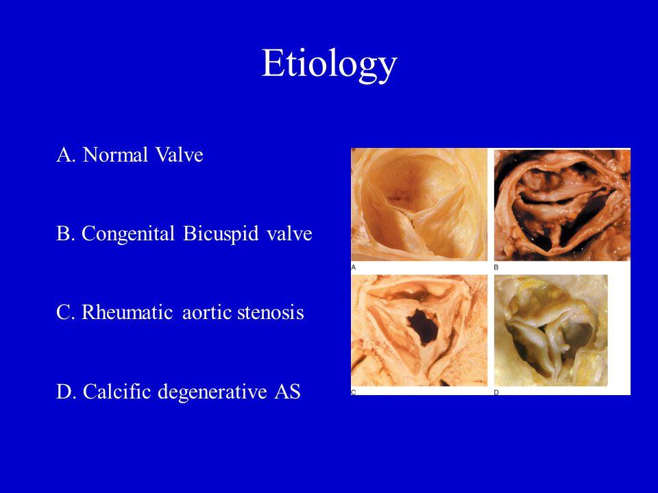 Etiology A. Normal Valve B. Congenital Bicuspid valve C. Rheumatic aortic stenosis D. Calcific degenerative AS