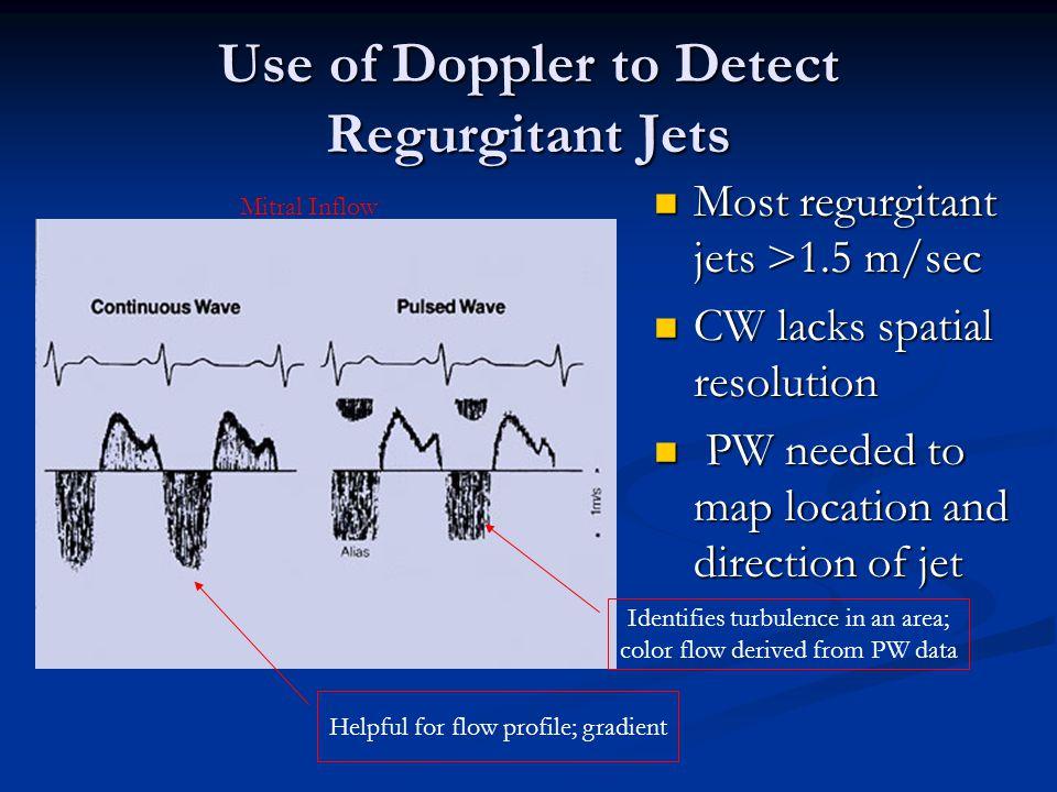 Use of Doppler to Detect Regurgitant Jets Most regurgitant jets >1.5 m/sec Most regurgitant jets >1.5 m/sec CW lacks spatial resolution CW lacks spati