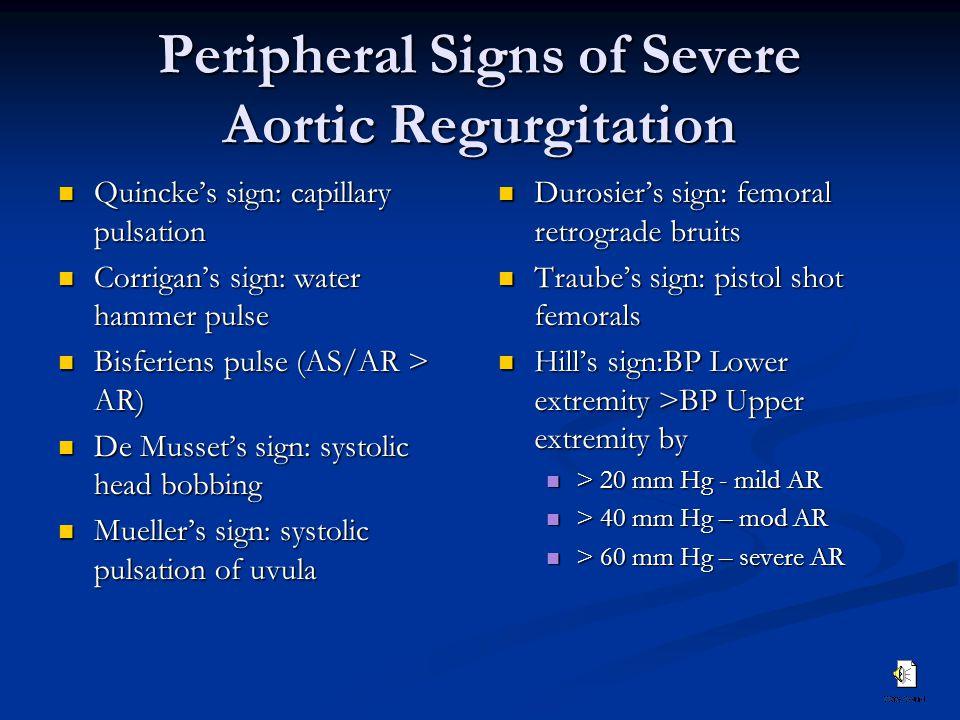 Peripheral Signs of Severe Aortic Regurgitation Quincke's sign: capillary pulsation Quincke's sign: capillary pulsation Corrigan's sign: water hammer