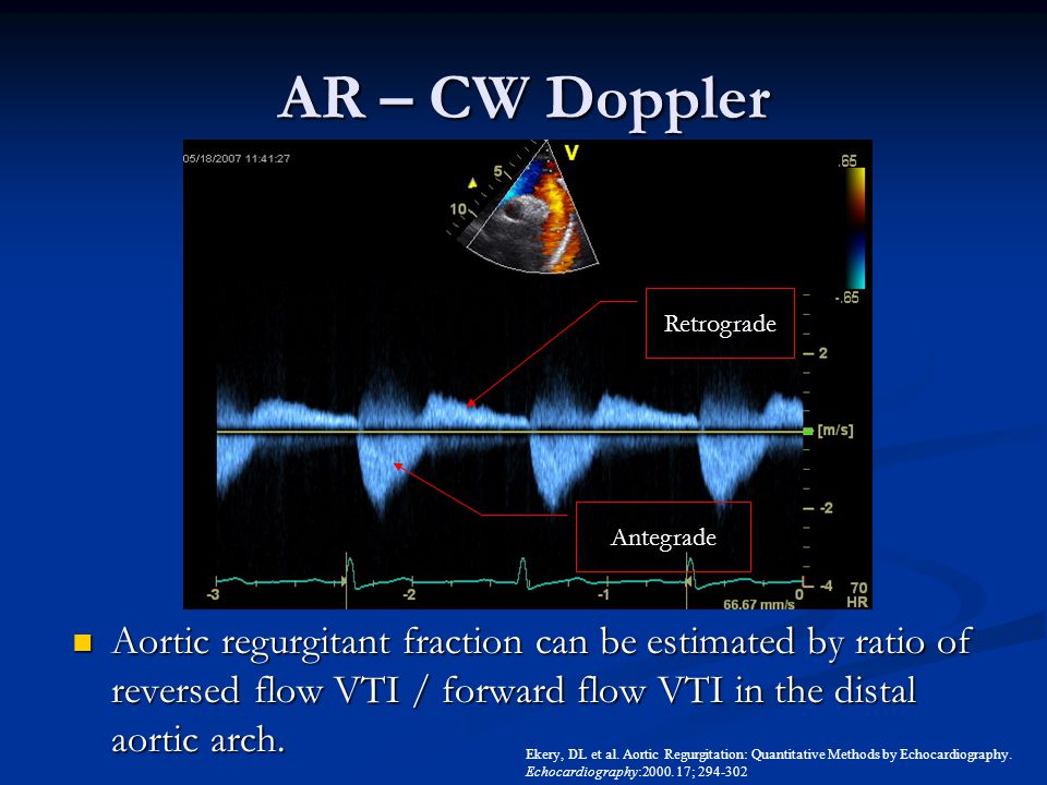 AR – CW Doppler Aortic regurgitant fraction can be estimated by ratio of reversed flow VTI / forward flow VTI in the distal aortic arch. Aortic regurg