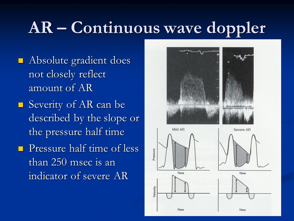 AR – Continuous wave doppler Absolute gradient does not closely reflect amount of AR Absolute gradient does not closely reflect amount of AR Severity