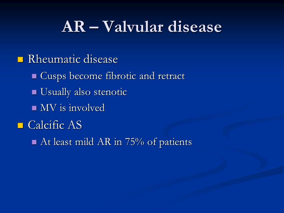 AR – Valvular disease Rheumatic disease Rheumatic disease Cusps become fibrotic and retract Cusps become fibrotic and retract Usually also stenotic Us