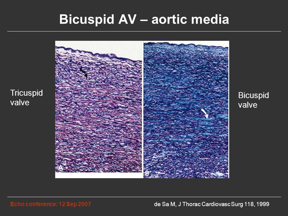Bicuspid AV – aortic media Echo conference: 12 Sep 2007de Sa M, J Thorac Cardiovasc Surg 118, 1999 Tricuspid valve Bicuspid valve