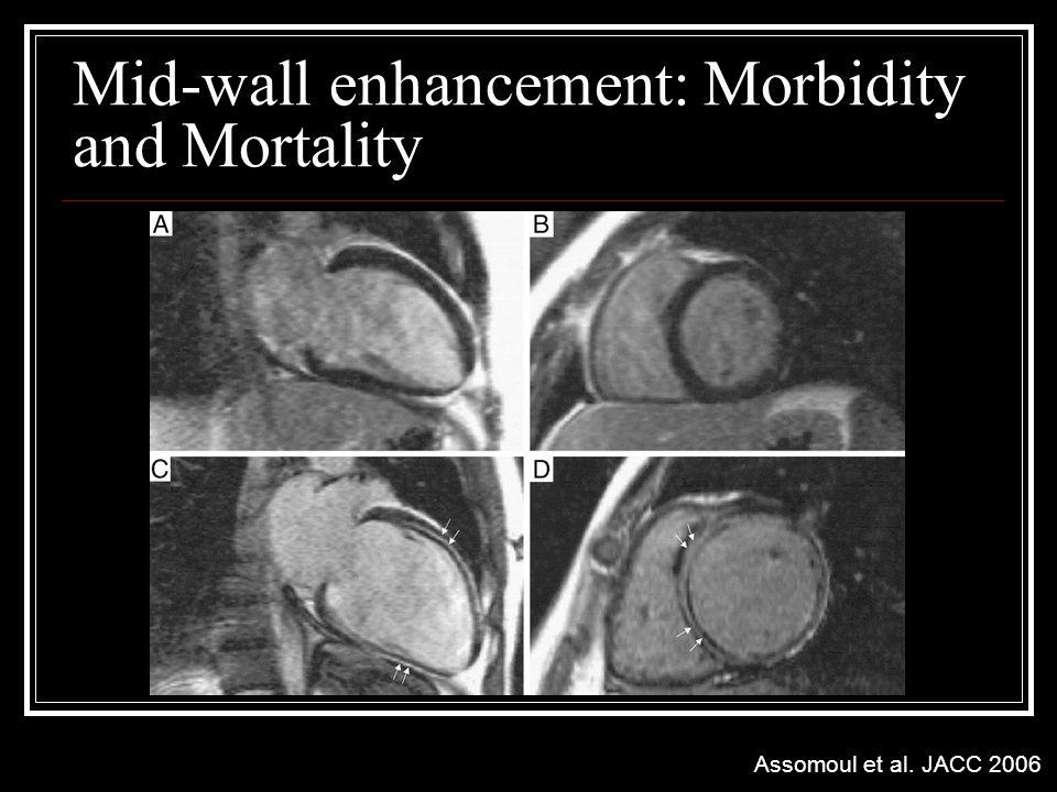 Mid-wall enhancement: Morbidity and Mortality Assomoul et al. JACC 2006