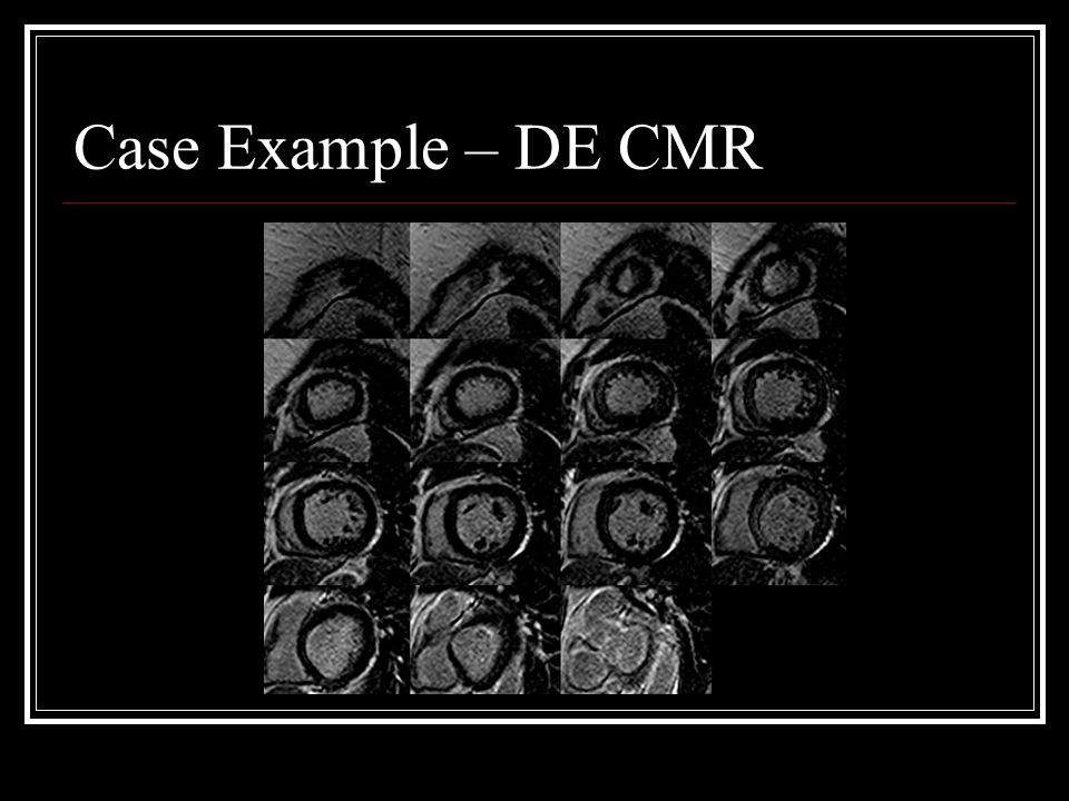 Case Example – DE CMR
