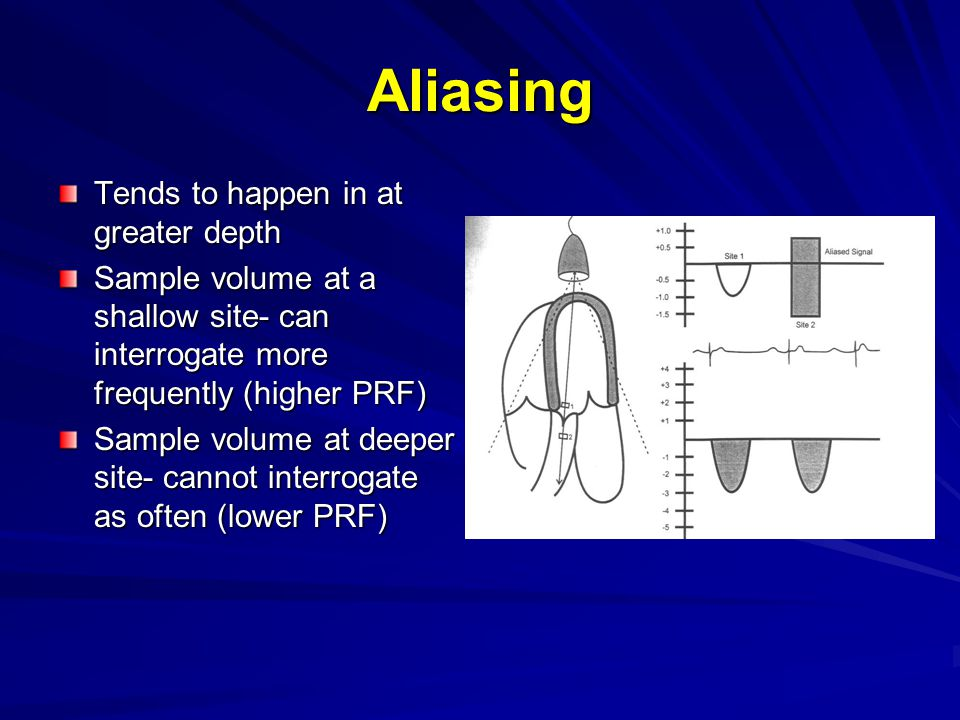 Aliasing Tends to happen in at greater depth Sample volume at a shallow site- can interrogate more frequently (higher PRF) Sample volume at deeper sit