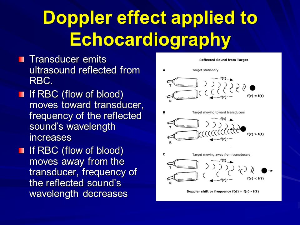 Doppler effect applied to Echocardiography Transducer emits ultrasound reflected from RBC. If RBC (flow of blood) moves toward transducer, frequency o