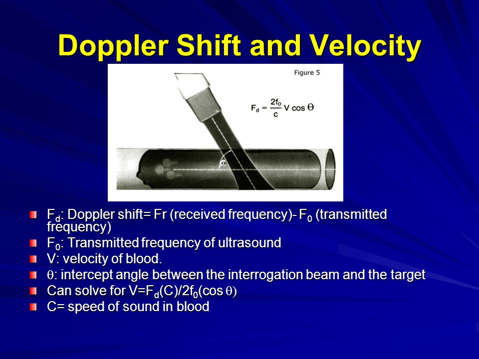 Clinical Examples position of doppler beam 2-D guided In GE system, the sample volume is indicated by double lines Spectral envelope not filled in Common use- mitral inflow velocity and LVOT velocity