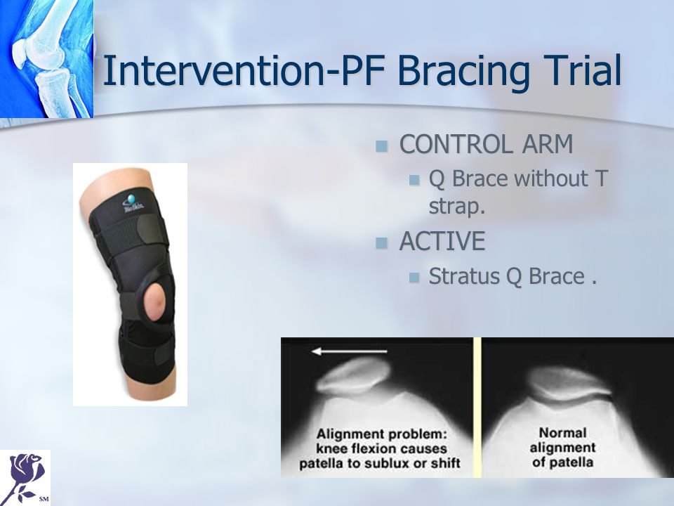 Intervention-PF Bracing Trial CONTROL ARM Q Brace without T strap. ACTIVE Stratus Q Brace.