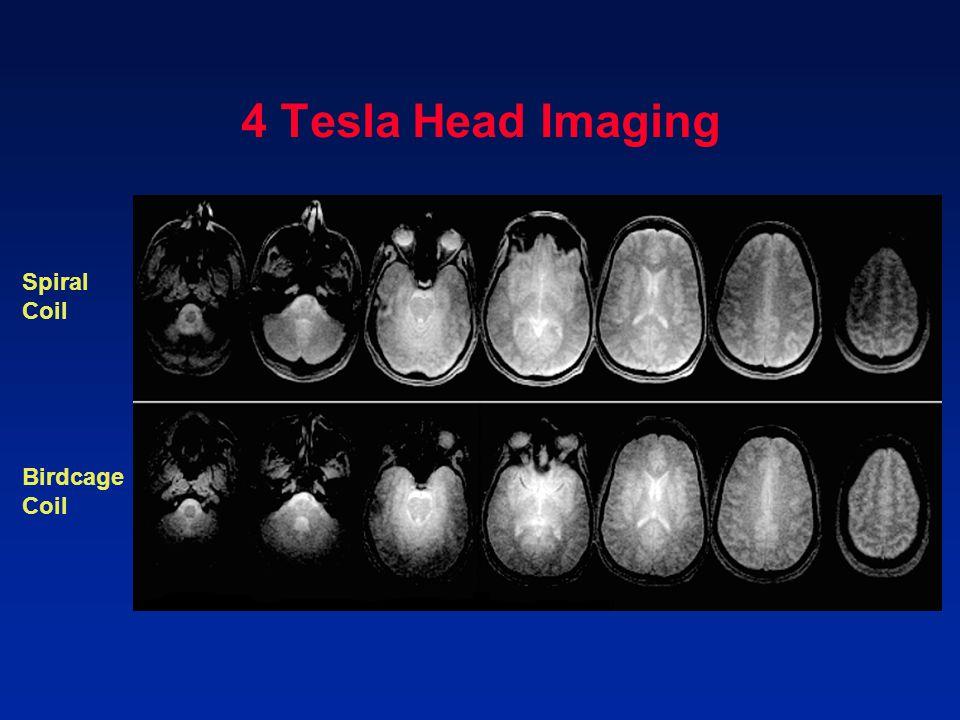 4 Tesla Head Imaging Spiral Coil Birdcage Coil
