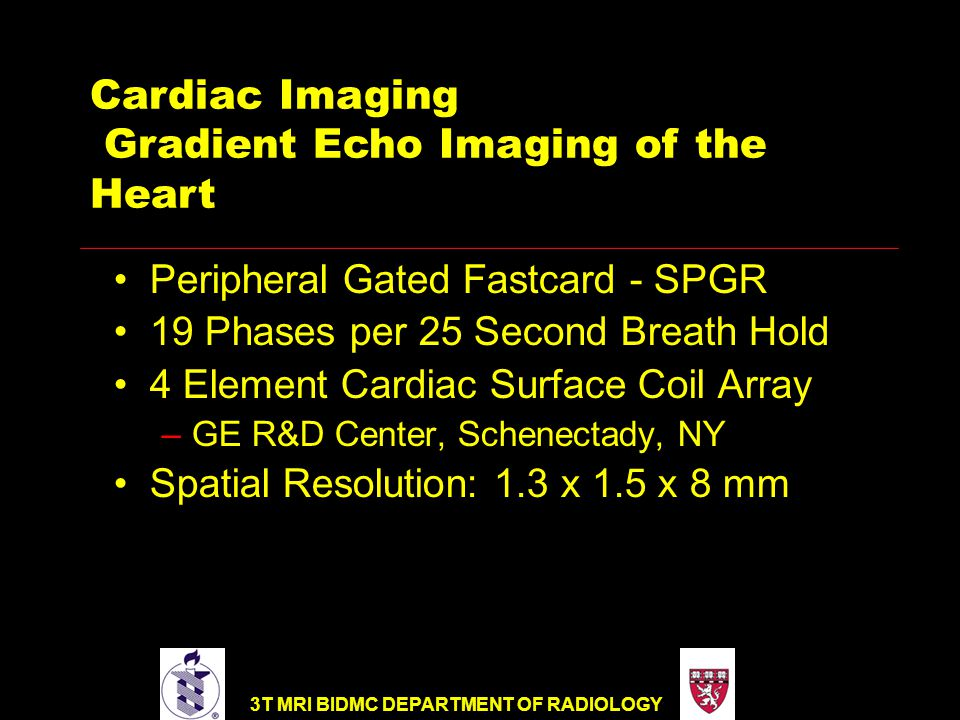 3T MRI BIDMC DEPARTMENT OF RADIOLOGY Peripheral Gated Fastcard - SPGR 19 Phases per 25 Second Breath Hold 4 Element Cardiac Surface Coil Array –GE R&D