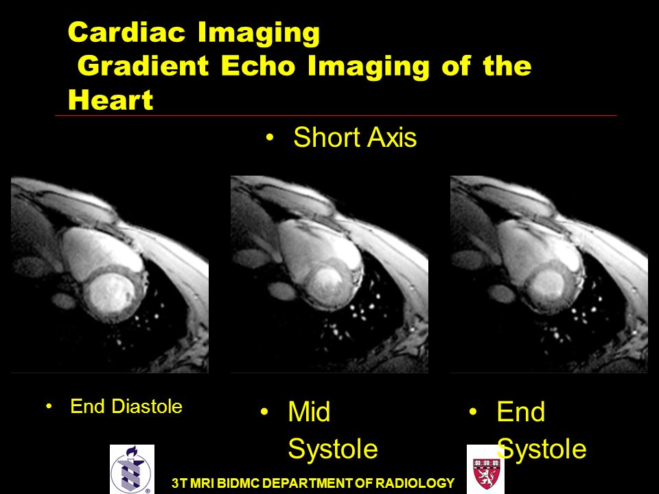 3T MRI BIDMC DEPARTMENT OF RADIOLOGY End Diastole Cardiac Imaging Gradient Echo Imaging of the Heart Mid Systole End Systole Short Axis