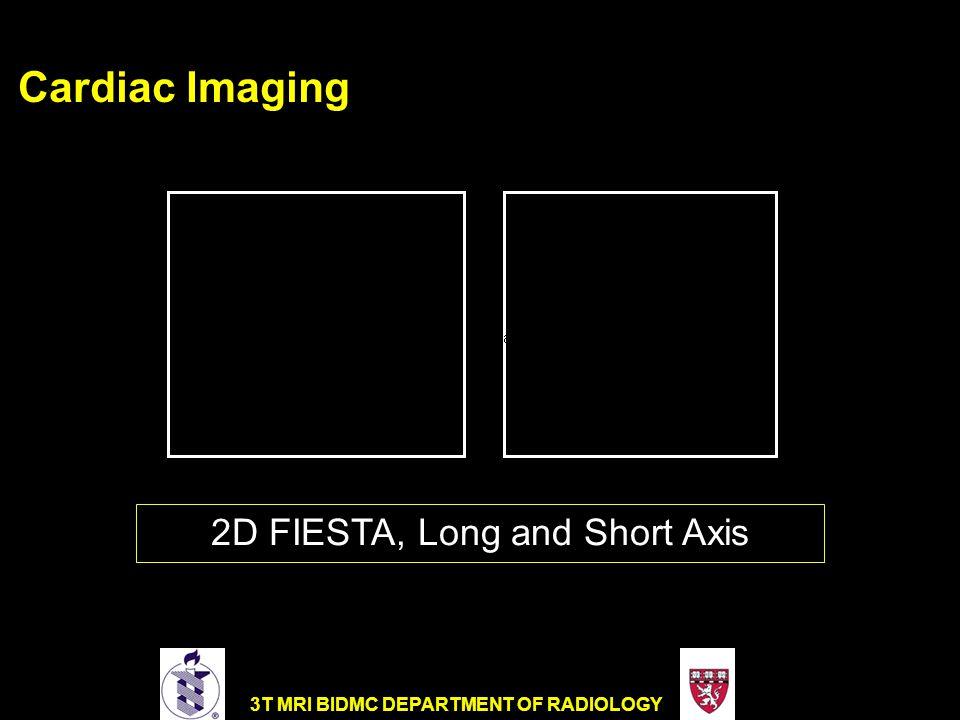 3T MRI BIDMC DEPARTMENT OF RADIOLOGY Cardiac Imaging 2D FIESTA, Long and Short Axis