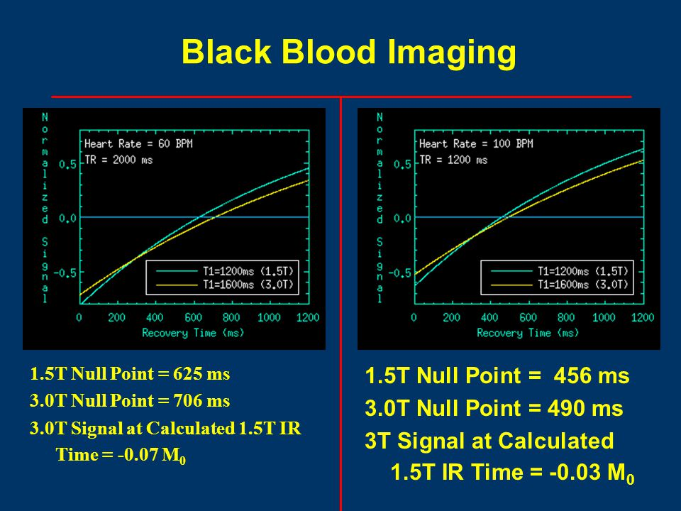 1.5T Null Point = 625 ms 3.0T Null Point = 706 ms 3.0T Signal at Calculated 1.5T IR Time = -0.07 M 0 Black Blood Imaging 1.5T Null Point = 456 ms 3.0T