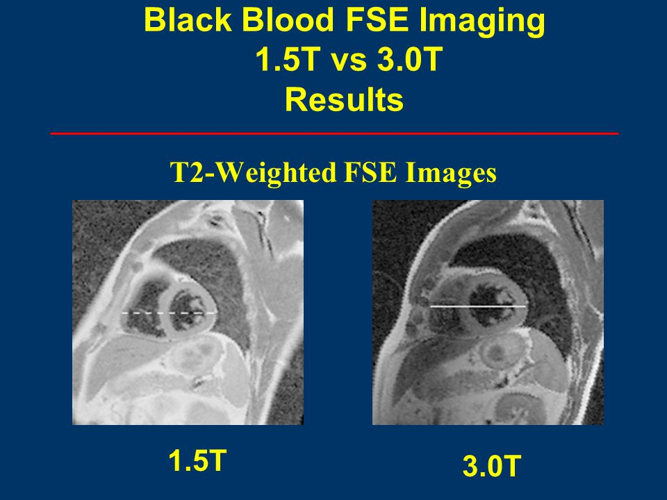T2-Weighted FSE Images 1.5T 3.0T Black Blood FSE Imaging 1.5T vs 3.0T Results