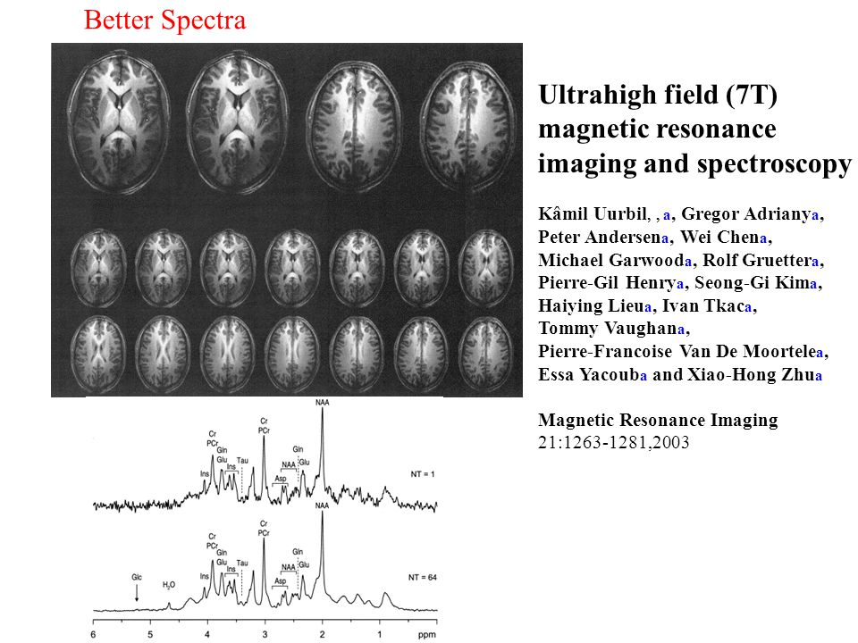 Ultrahigh field (7T) magnetic resonance imaging and spectroscopy Kâmil Uurbil,, a, Gregor Adriany a, Peter Andersen a, Wei Chen a, Michael Garwood a,